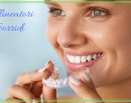 allineatori dentali invisibili dentista ammendolia