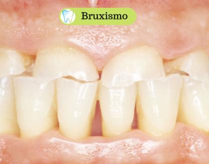 Bruxismo - Combattilo proteggendo i tuoi denti