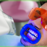 Sbiancamento denti professionale - Come funziona?