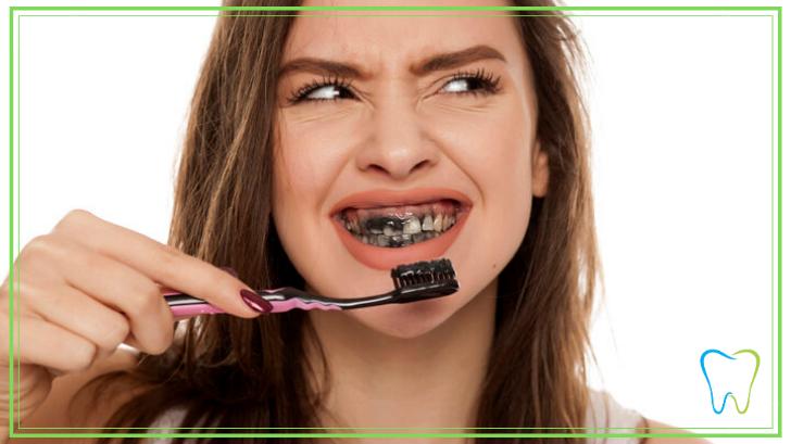 dentifricio nero dentista ammendolia velletri