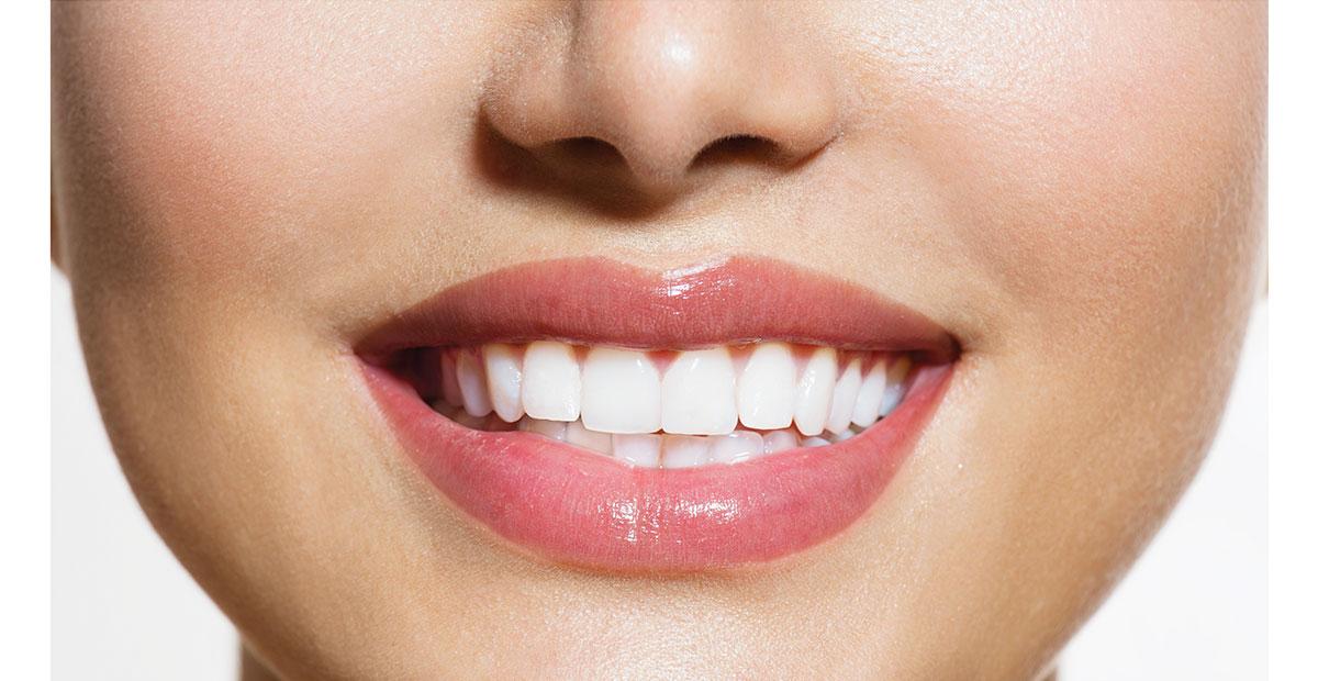 sbiancamento dentale velletri dentista ammendolia
