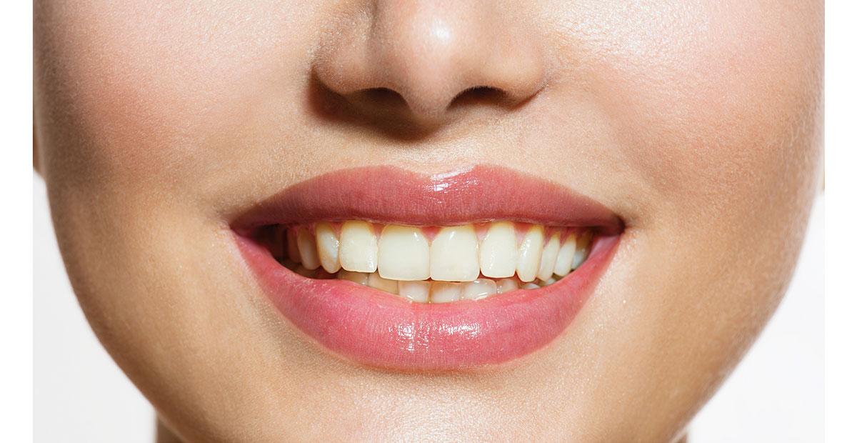 sbiancamento dentista velletri ammendolia