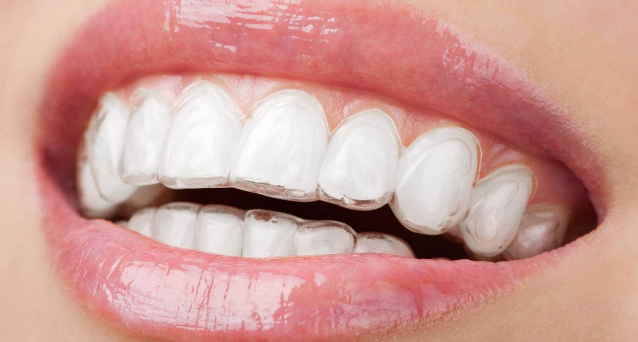 Ortodonzia<br /> invisibile