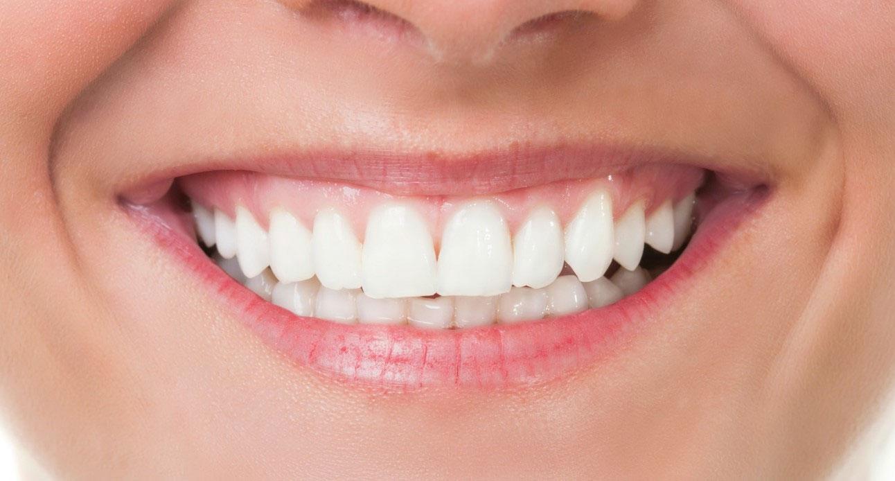 Sbiancamento<br /> denti
