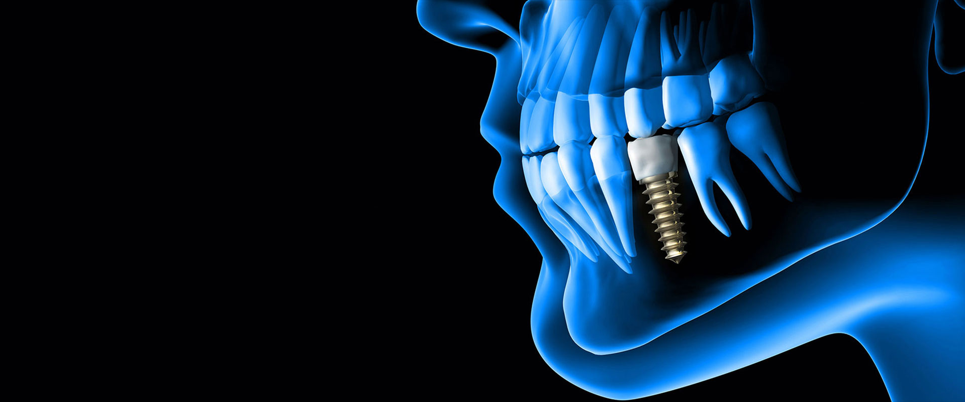 impianti_dentali_dentista_ammendolia_velletri