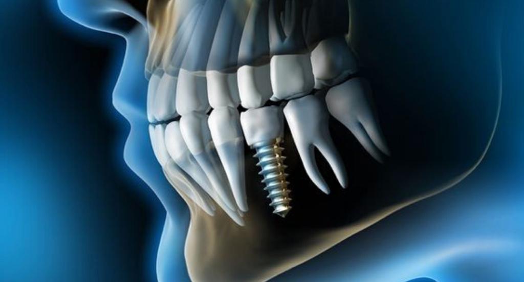 impianti dentali dentista velletri ammendolia