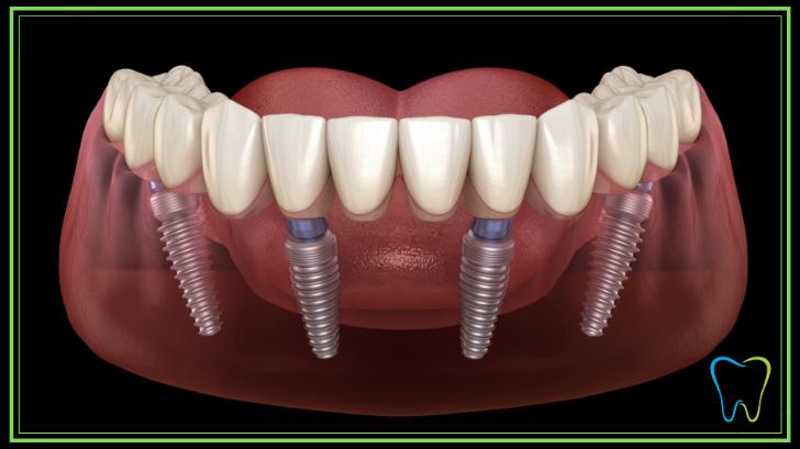 all on four dentista velletri