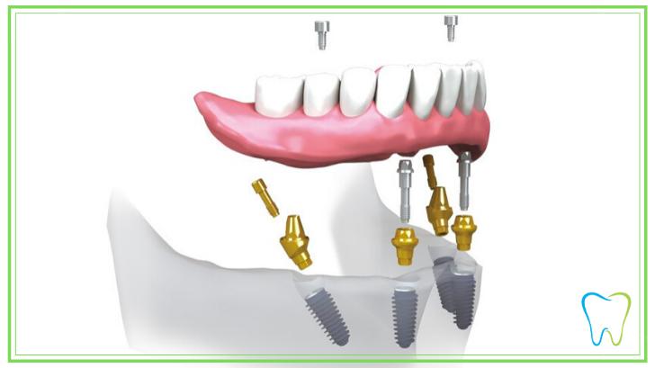 dentista ammendolia velletri implantologia