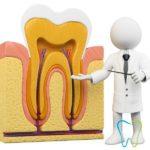 Devitalizzazione / Endodonzia a Velletri