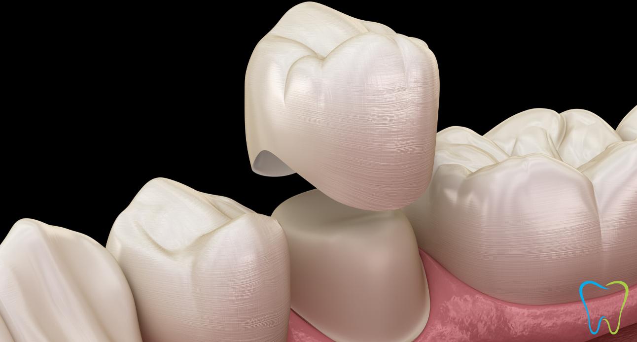 capsula dentale dentista velletri ammendolia