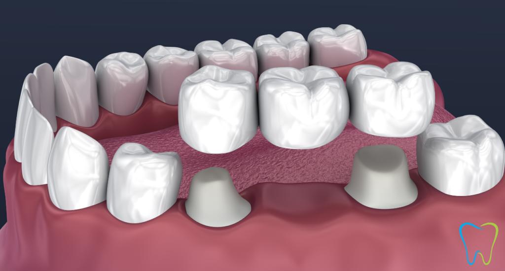ponte dentale ammendolia dentista velletri