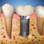 Impianti dentali a Velletri
