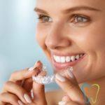 Ortodonzia invisibile a Velletri