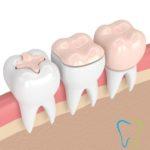 Otturazione del dente / Odontoiatria Conservativa