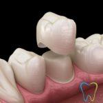Capsule o Corone dentali a Velletri