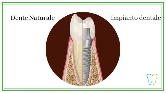 dente impianto dentale dentista velletri