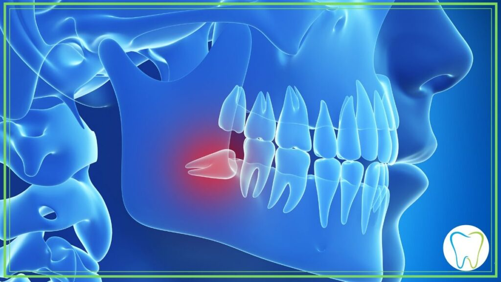 dente del giudizio dentista velletri