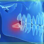 Chirurgia orale a Velletri