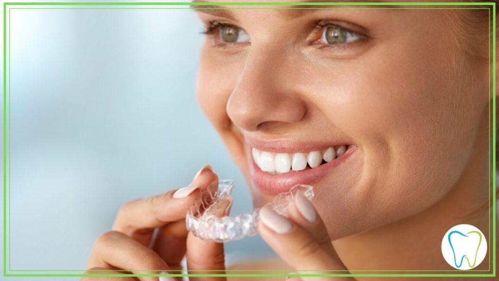 sbiancamento denti velletri dentista ammendolia