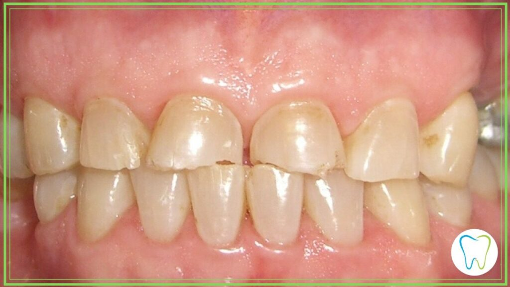 bruxismo velletri dentista ammendolia