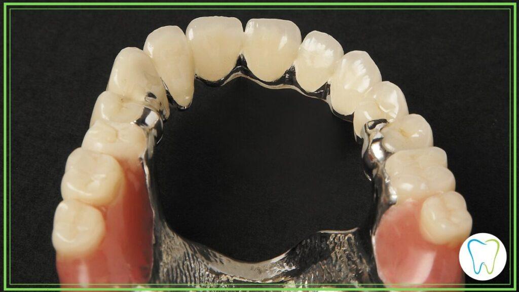 protesi combinata dentista velletri ammendolia
