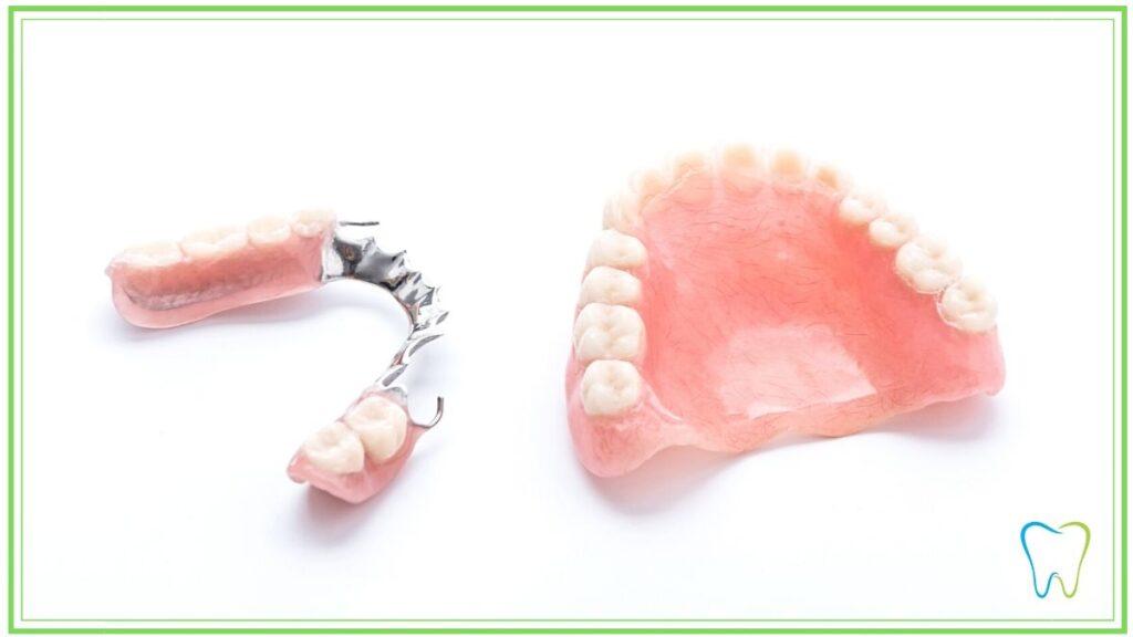 protesi parziale dentista ammendolia velletri