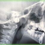 Ortodonzia fissa a Velletri