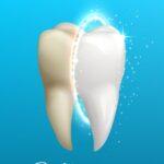 Sbiancamento denti a Velletri