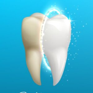 sbiancamento denti velletri