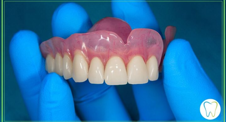 dentiera riparazioni velletri dentista ammendolia