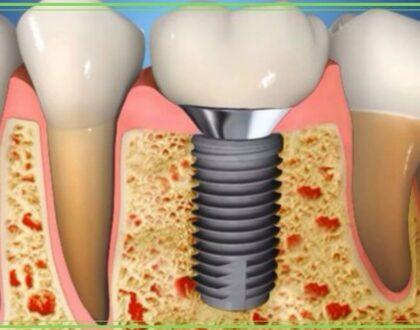 impianti dentali velletri dentista ammendolia