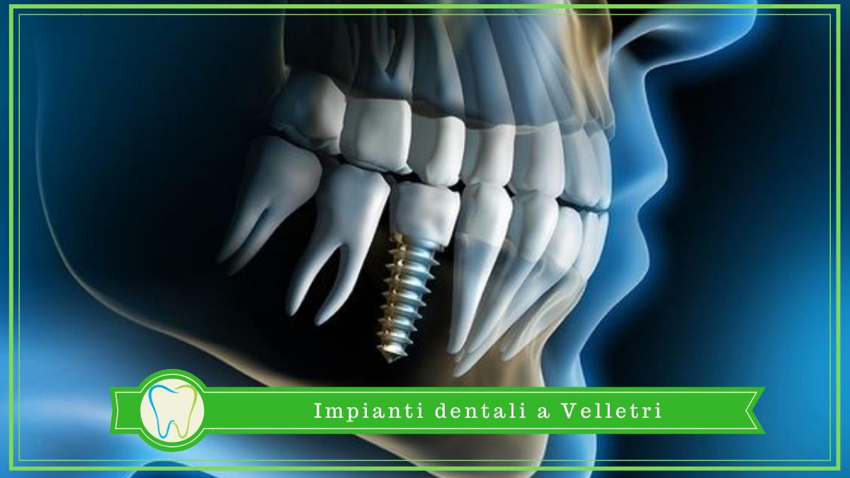 impianti denti velletri dentista ammendolia