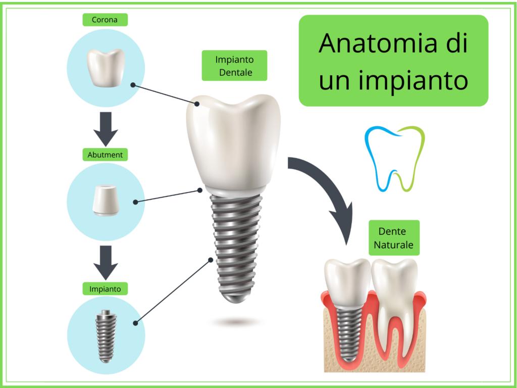 anatomia impianto dentale dentista ammendolia