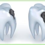 Cura della Carie dentaria a Velletri