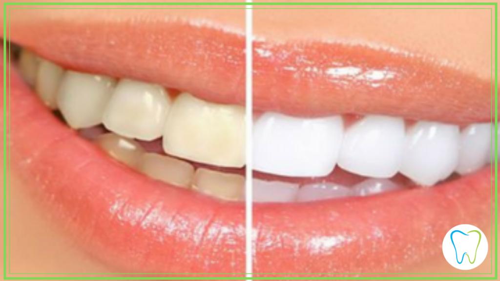 sbiancamento smart dentista velletri ammendolia