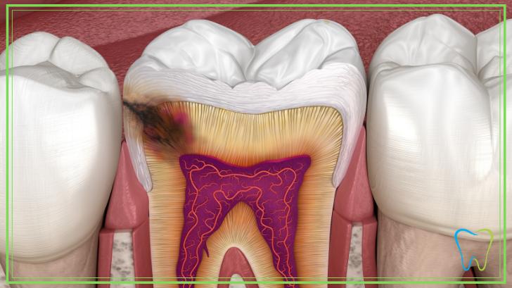 carie dentaria velletri dentista ammendolia