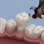 Dove osano le capsule dentali