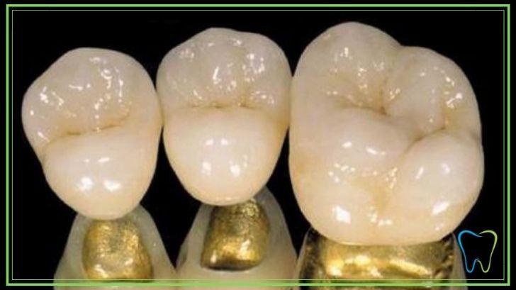 capsule dentali oro porcellana velletri