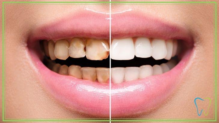 capsule dentali velletri dentista ammendolia