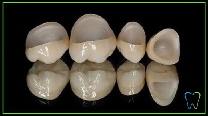 capsule zirconio dentista ammendolia velletri