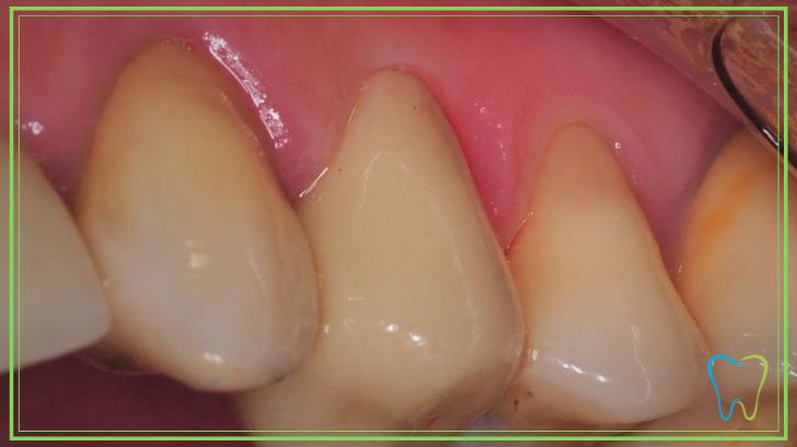 capsule dentali disilicato velletri ammendolia