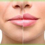Filler labbra ai Castelli Romani
