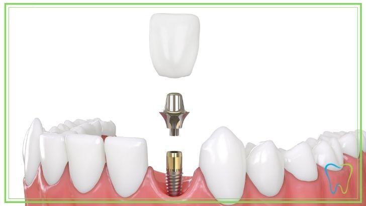 impianto dentale abutment dentista ammendolia